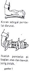 gb1-pth-lengn-bwh